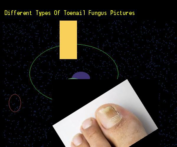 Different types of toenail fungus pictures - Nail Fungus Remedy. You have nothing to lose! Visit Site Now
