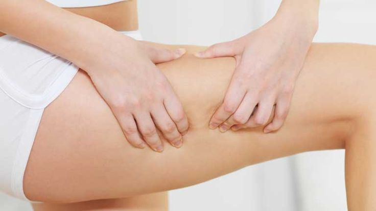 Este ritual para aliviar la retención de líquidos es apropiado para deshinchar las piernas, que suele ser la zona del cuerpo donde más se acusa la retención.