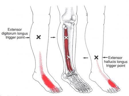 Anterior Ankle Pain - Primary Symptoms @ Extensor Digitorum Longus