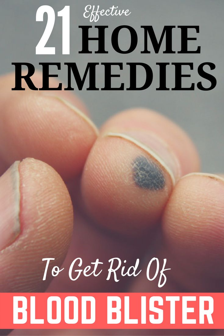 Top 21 Natural ways to cure Blood Blisters at Home | Home Remedy Nation  #Blood #Blisters #Natural #HomeRemedies #Treat #Remedy