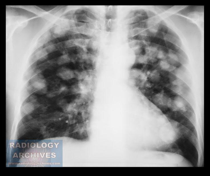 Πολλαπλές Μεταστάσεις Πνευμόνων (Καρκίνος Όρχεως)