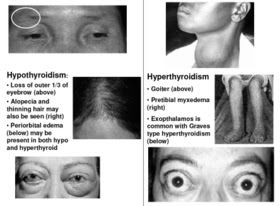Endocrine Disorders     • Anterior Pituitary : (ACTH, TSH, FSH, GH, LH, Prolactin)   – Hypo: Hypopituitarism   – Hyper: Hyperpituitar...