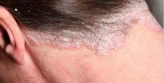 O assunto deste post é câncer de pele.Nós vamos ensinar uma alternativa natural para esse prgoblema.É uma receita que tem como principal ingrediente uma substância que comprovadamente combate as células cancerosas.