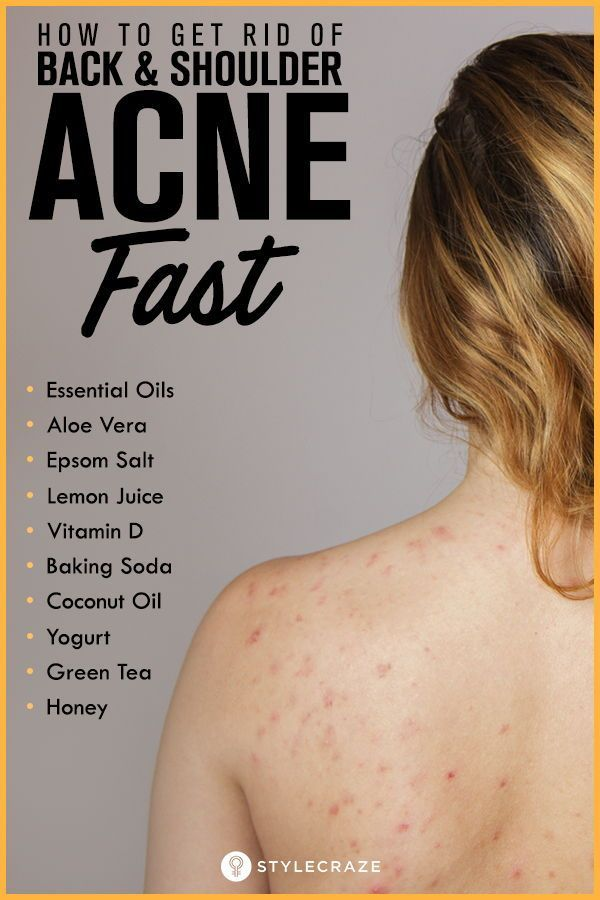 cee9bbd6fb5cd43d7f609fe33f43426a - How To Get Rid Of Back Acne Scars Home Remedies