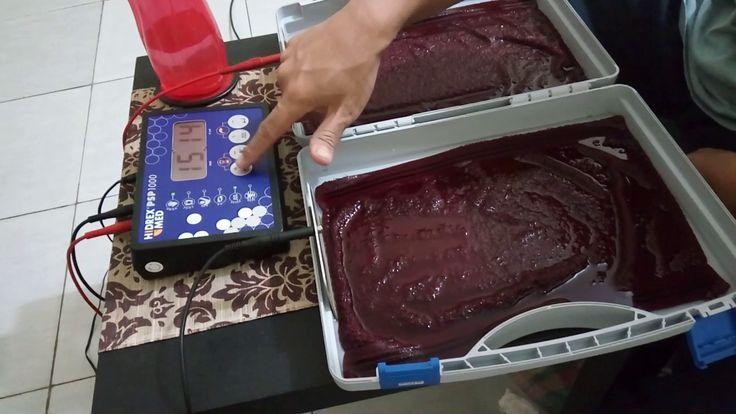 Demo Terapi Ionto Hyperhidrosis Tangan