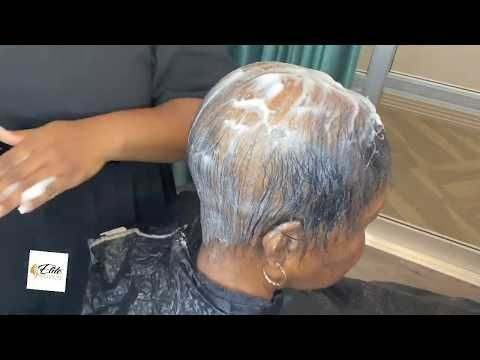 Severe Alopecia How To Hide Balding Alopecia Hair Style