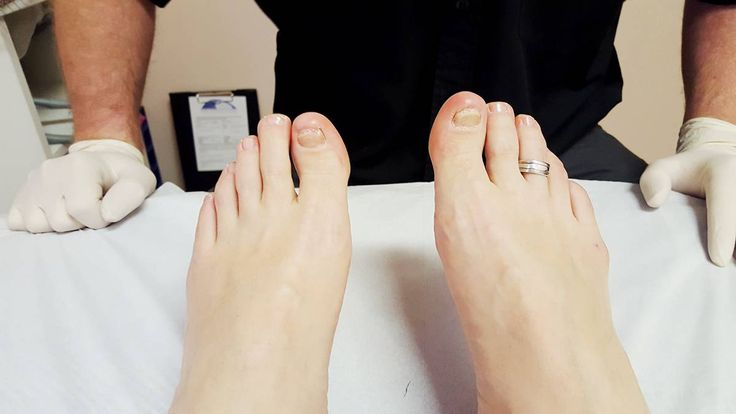 State of my toenails with the fungal infection in February 2016. Treated by the Newcastle Foot Clinic