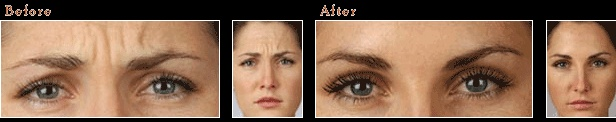 Botox in Edinburgh - before & after photo