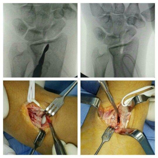 Fractura articular desplazada. 8 dias de evolucion. Llevada a osteosintesis con abordaje dorsal. Placas bloqueadas 2.0 y sustituto óseo.