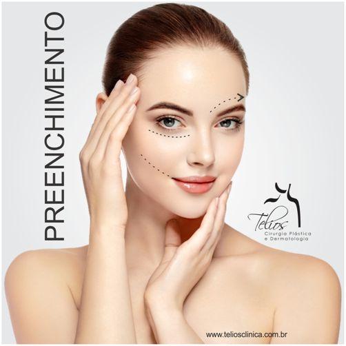 É um procedimento realizado para repor volume ou corrigir pequenos defeitos. Pode ser aplicado em diversos locais como bigode chinês, olheiras, lábios, malares (maçã do rosto) e cicatrizes de acne. O efeito do preenchimento é imediato. O resultado é uma aparência mais suave e jovem, harmonizando o contorno facial. É realizado com material biocompatível e absorvível, sendo extremamente seguro.  #TeliosClinica #DraRenataCamargo #dermatologia #rejuvenescimento