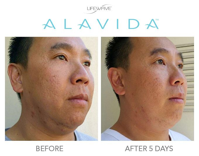 We are thrilled with the response we've received from those who have tried our new Alavida Regenerating Trio! With a 24/7 approach to skin nutrition that merges science and nature, Alavida regenerates the radiance your skin once had.