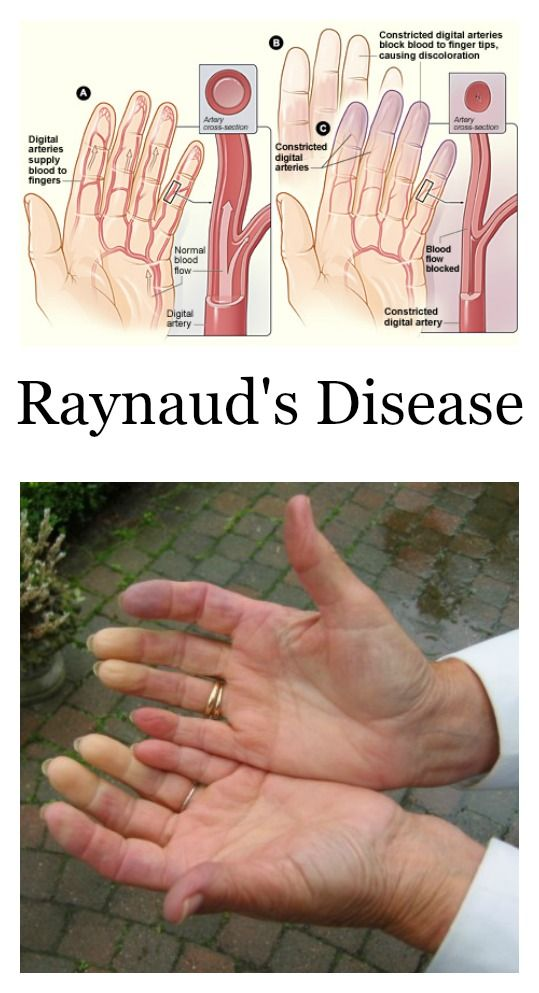 Raynauds Disease Syndrome? The term syndrome is used to describe the symptoms of Raynauds disease when they occur in conjunction with other disorders.