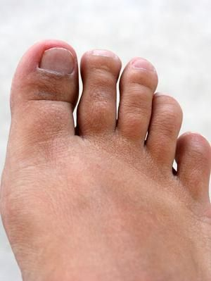 Uses for Vinegar on Toes