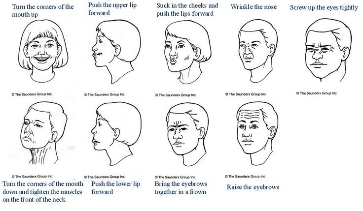 bell's palsy exercises - Google Search                                                                                                                                                      More