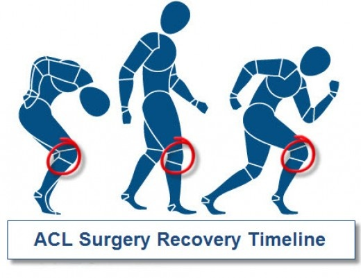 My ACL Reconstruction Recovery – And Some Tips For Dealing With Post-Surgery Life