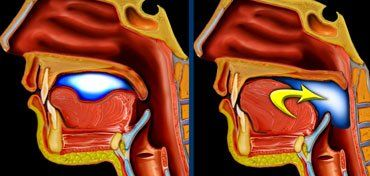 Swallowing disorders - this site has a nice video of a normal swallow