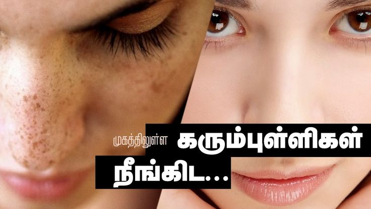 How remove dark spots on face within 2 days  - Tamil Beauty Tips