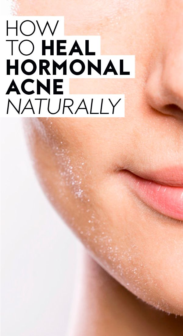 Why Your Hormones Might Be Taking Out Their Rage On Your Face In 2020 Hormonal Acne Treatment Acne Causes Jawline Acne