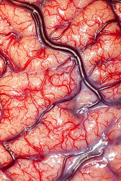 ☞ MD ☆☆☆ Surface of the human brain. The image won a 2012 Wellcome Trust award for photography. - Taken by Robert Ludlow of UCL's Institute of Neurology, the image is a rare shot of a living brain - a view normally only seen by neurosurgeons, showing veins, arteries and grey matter flushed pink with blood. This photo won the 2012 Wellcom Prize for microscope photography.