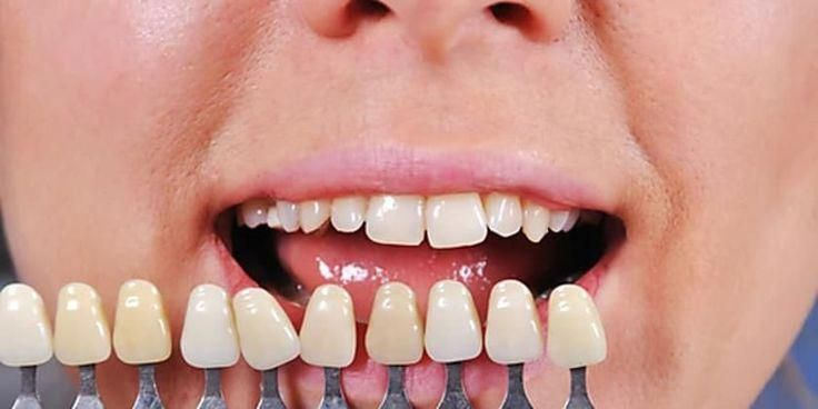 Troubled Wisdom Teeth Problems Zahnpuder Dentalhygienistshirts