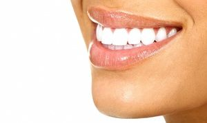 Groupon - Dental Exam with X-rays and Option for Opalescence Teeth Whitening at…