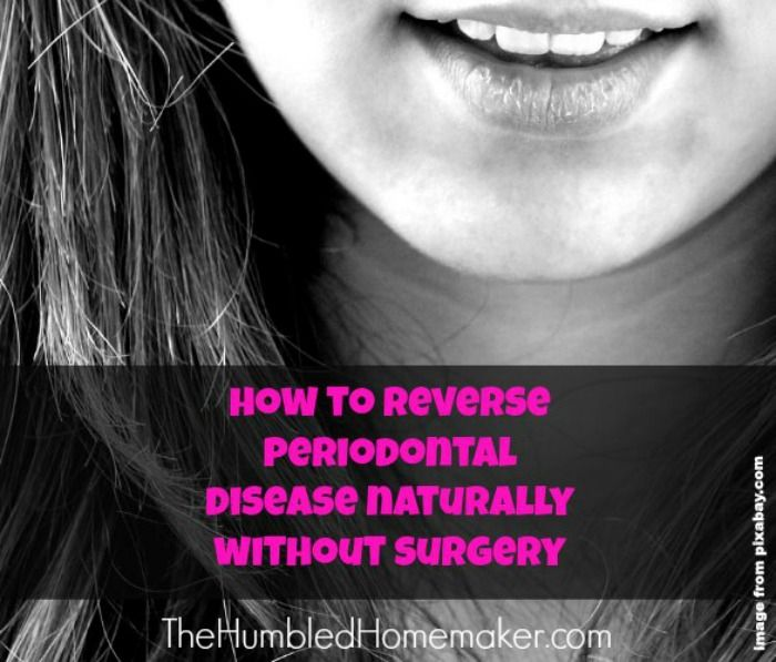 After being diagnosed with periodontal disease - and trying to avoid surgery - I found it's possible to reverse periodontal disease naturally.