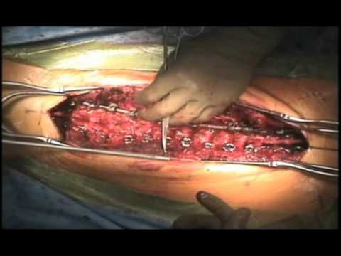 Part 3 Scoliosis Surgery Video - Adolescent Idiopathic Scoliosis - YouTube