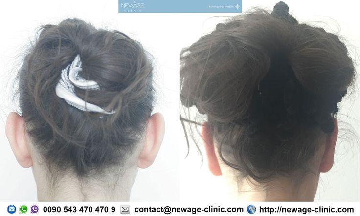 Ear Pinning 21 day after the surgery  #PlasticSurgery #earpinning #estética #cirugíaplástica #estetica #chirurgiaplastica #Ästhetische #plastischeChirurgie #chirurgieplastique