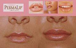 November Specials: Surgisil Lip Implants - a permanent, natural looking solution to full, luscious lips $3000 (Reg. $5000).  Xtreme Lashes® Eyelash Extensions starting at $45!