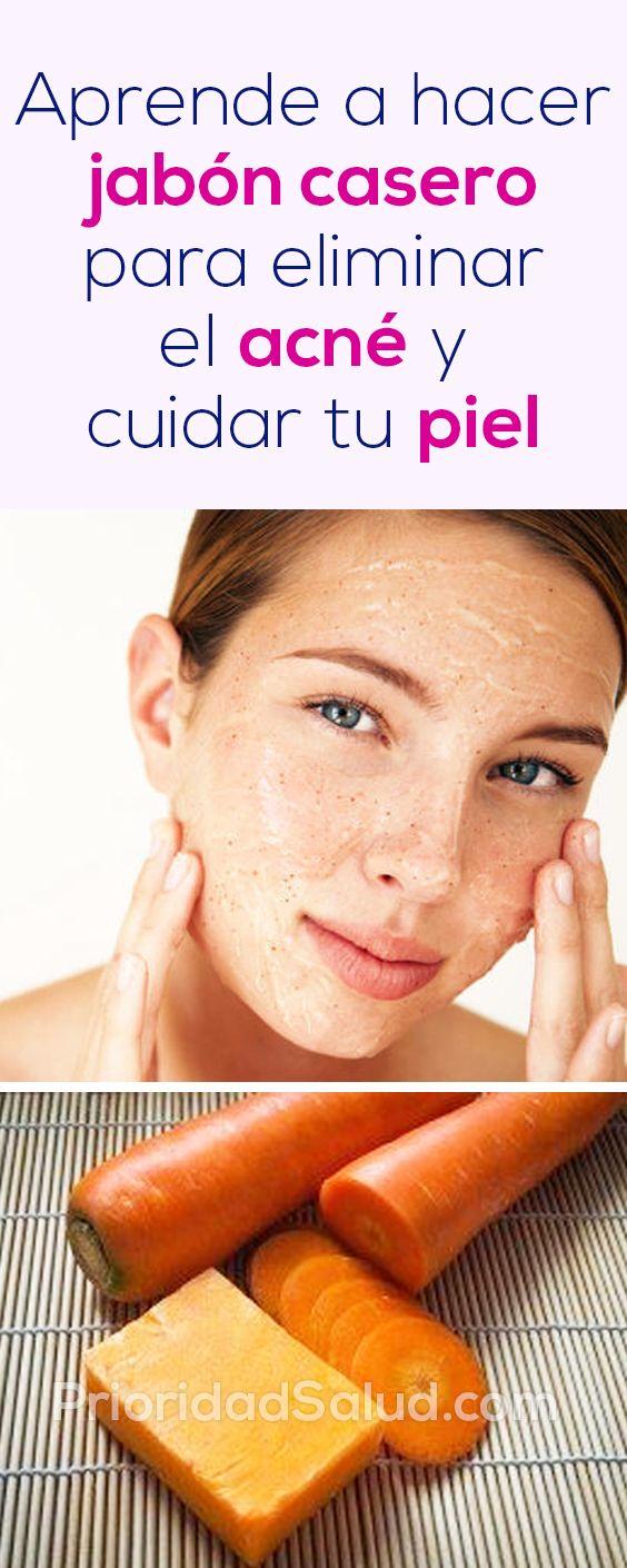 Aceite de oliva para eliminar el acne