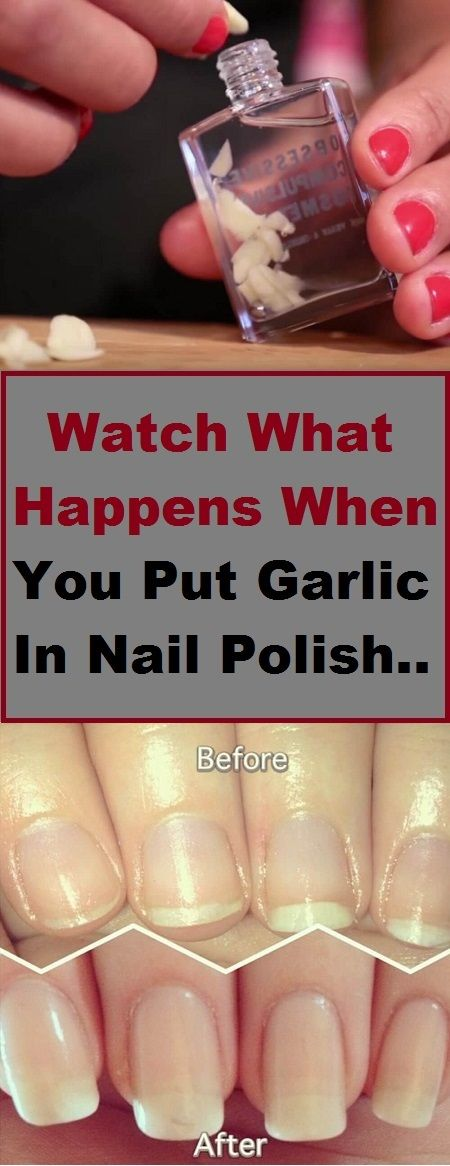 Knoblauch im Nagellack: Funktioniert es – All About Nails | Growth | Care | Decorations
