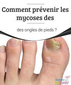 Comment prévenir les mycoses des ongles de pieds ?   Les #mycoses sur les ongles de pieds sont une des #affections les plus communes et auxquelles nous prêtons peu d'attention jusqu'à ce qu'elles propagent #sérieusement  #Bonneshabitudes