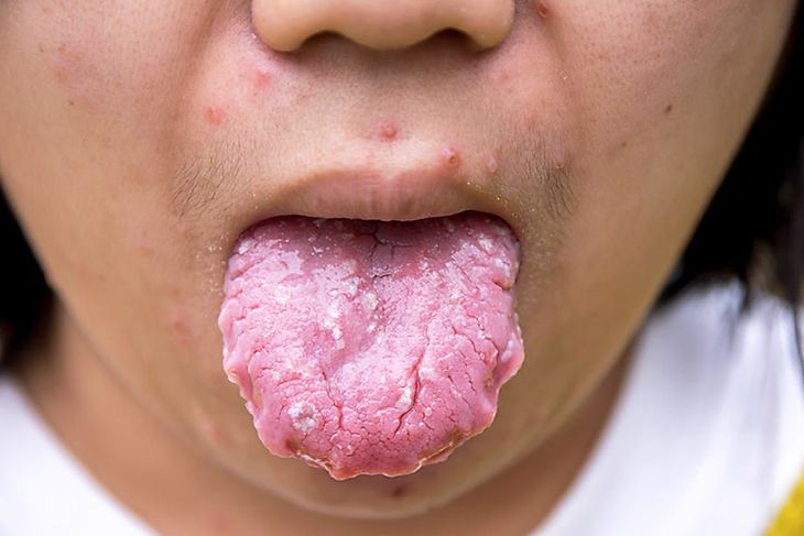 Symptoms of Yeast Infection - white on the tongue Read more at: https://ambrossimo.com/yeast-infections-signs-symptoms/