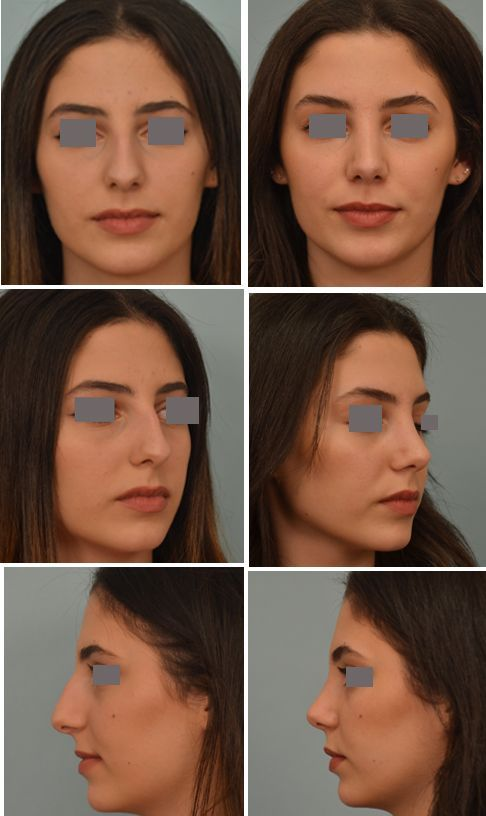 Nasenkorrektor vor und nach dem Abnehmen