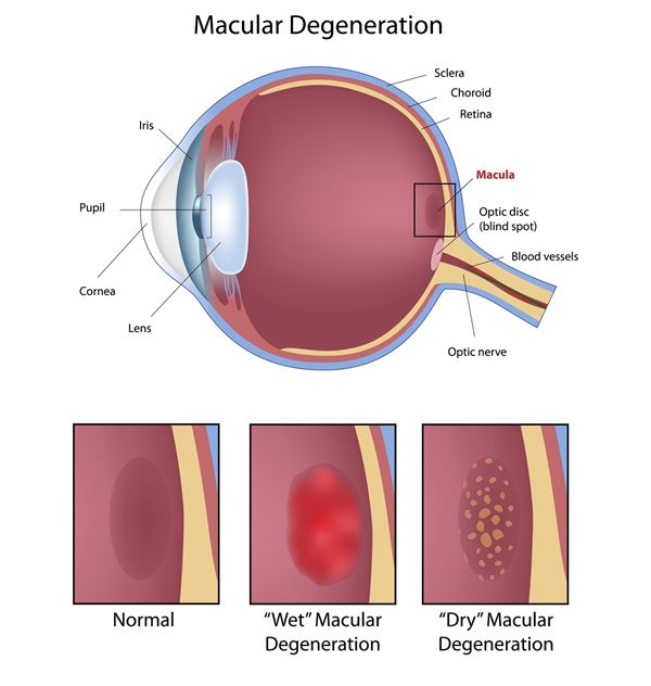 Symptoms, Causes and Treatments of Macular Degeneration Read the blog here - http://floridaeyecareassociates.com/blog/symptoms-causes-and-treatments-of-macular-degeneration  #Macular #Degenration #Eye #Conditions #EyeCare #Blog