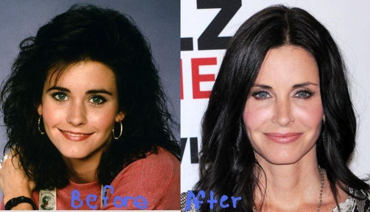 Courtney Cox Plastic Surgery Gone Wrong