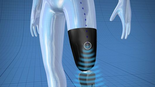 Biomedical engineering company Össur has announced the successful development of a thought controlled bionic prosthetic leg. The new technology uses implanted sensors sending wireless signals to the artificial limb's built-in computer, enabling subconscious, real-time control and faster, more natural responses and movements.