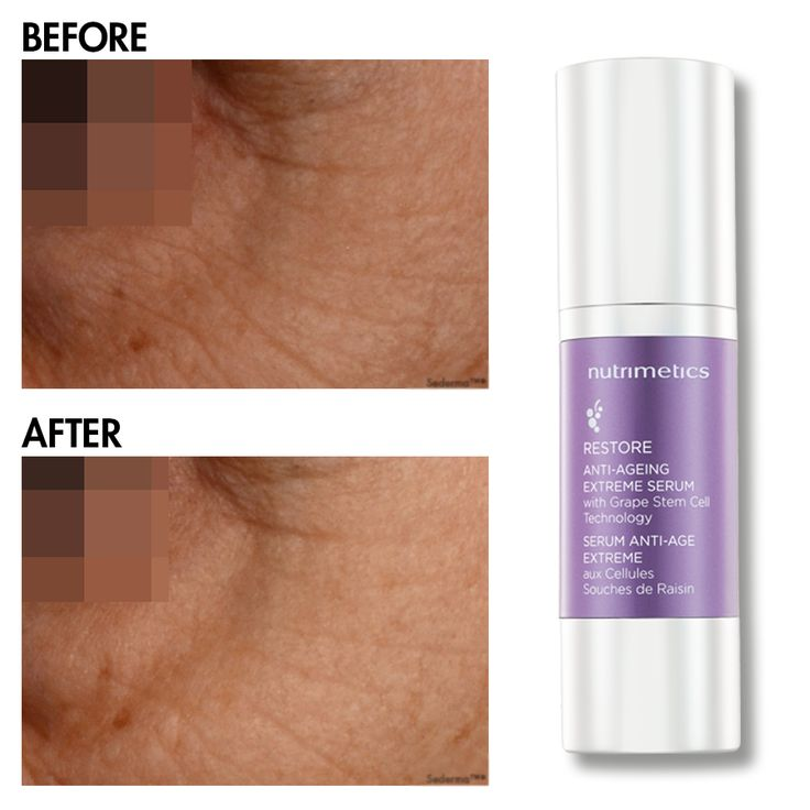 Nutrimetics Restore Before and After