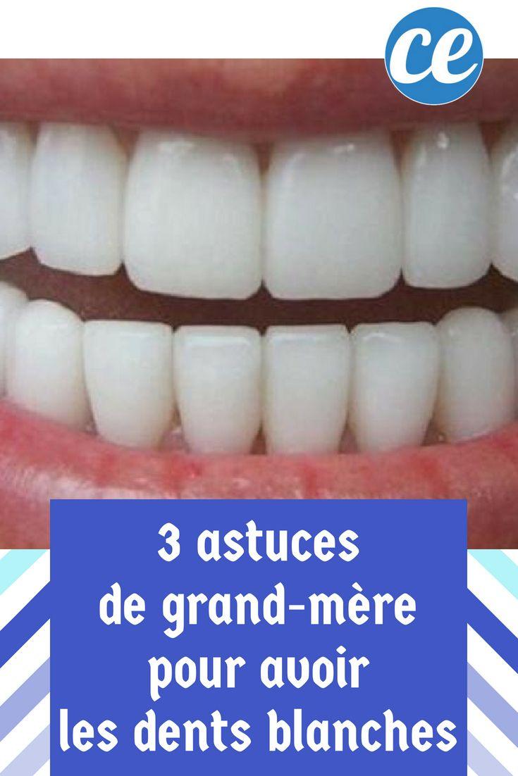 Comment Avoir Une Dentition Parfaite
