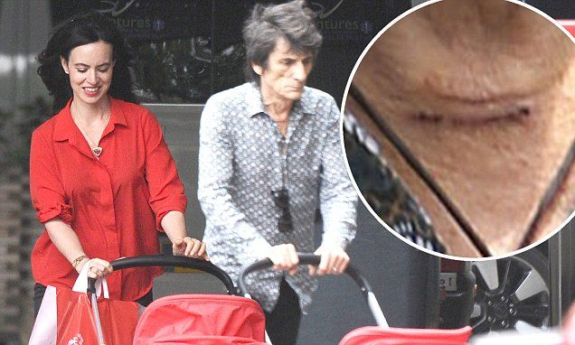 Ronnie Wood celebrates his 70th birthday with wife Sally after surgery