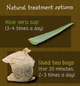Natural treatment for fever blisters on lips