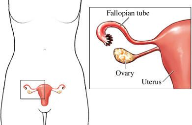 PCOS (Poly Cystic Ovary Syndrome) is a disorder. It affect the most of adult age women in their reproductive functionality. Impact of PCOS disorder arises the infertility problems. Due to ovaries abnormalities the hormones (estrogen & progesterone) are imbalanced. It is the most probable cause of PCOS. Homeopathy is a safe medical treatment that increases the body healing mechanism to oppose the disease occurrences. Homeocare International provides homeopathy treatment for PCOS problems.