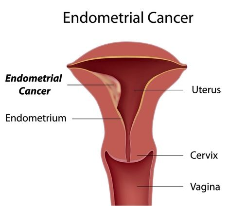 What are the symptoms of endometrial cancer?  In most cases the first symptom to develop is abnormal vaginal bleeding such as:  Vaginal bleeding past the menopause. This can range from spotting to more heavy bleeds. This is the most common symptom of endometrial cancer. Bleeding after having sex . Bleeding between normal periods, in women who have not gone through the menopause. Early symptoms that occur in some cases are: pain during or after having sex, vaginal discharge, and pain in the…