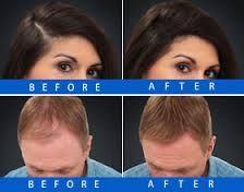 Before & After Nanogen Hair Fibres  www.nanogen.ae
