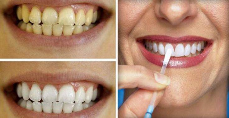 Este é o segredo que os dentistas não querem que você descubra. Faça isto uma vez por dia durante uma semana e tenha dentes brancos como nunca.