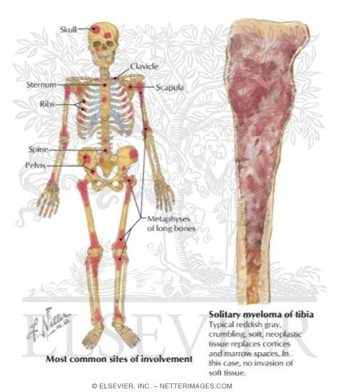 multiple myeloma - Google Search