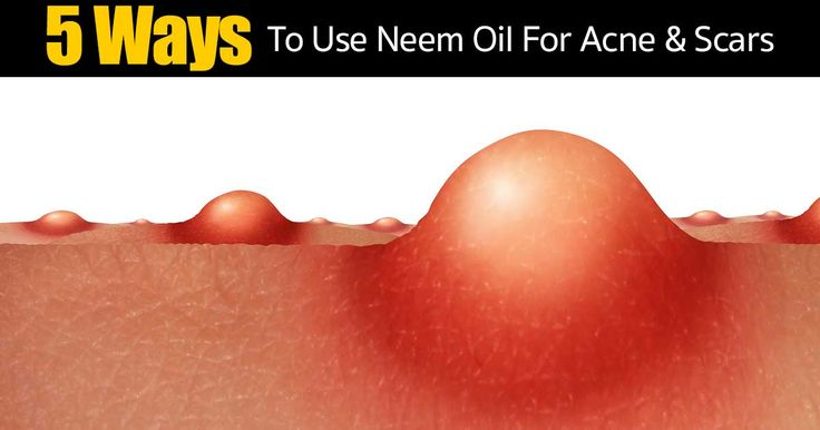 Neem oil, leaf and powder are very important in the practice of Ayurvedic medicine, which is an ancient form of east Indian medicine. All parts of the neem tree (seed, root, bark and leaf) are used in a wide variety of healing preparations. Neem is especially valued for its healing effect on...