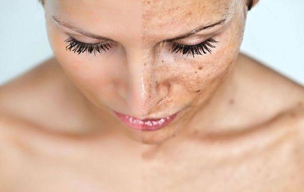Dans cet article, nous allons partager avec vous la recette d'une lotion au persil pour prendre soin de la peau, et éliminer les taches et les altérations qui peuvent affecter notre beauté. Les effets du persil pour la peau le persil est idéal pour prendre...