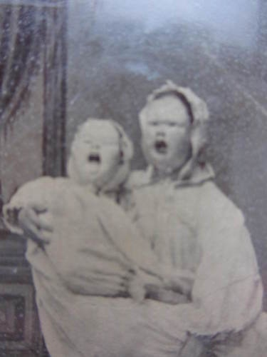 Unusual Antique Post Mortem Tintype Photo of Mentally Handicapped Couple