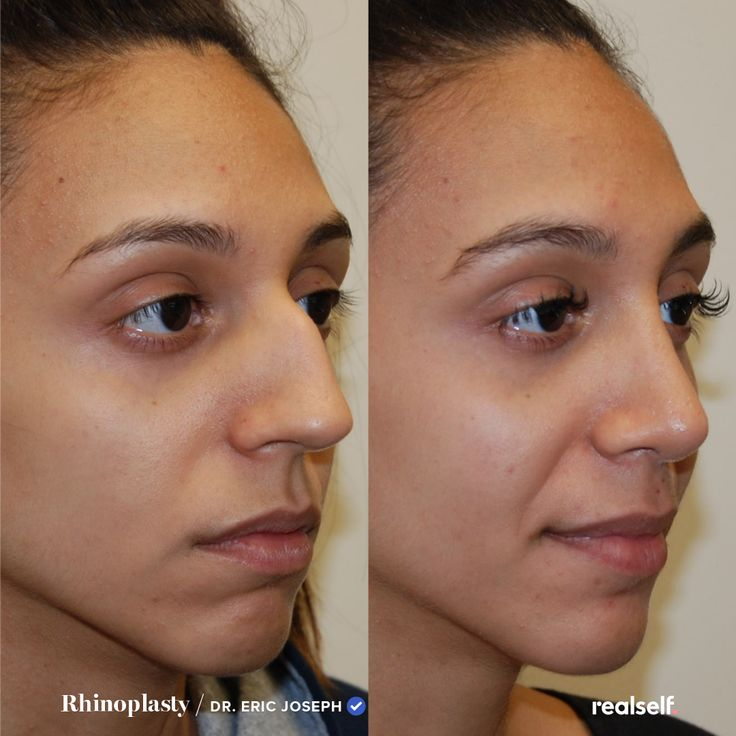How to get the right nose for you. in 2020 Nose job